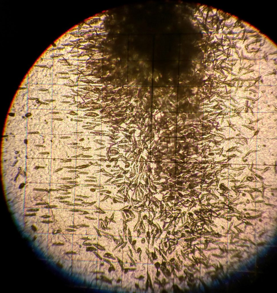 Ascospores under the microscope